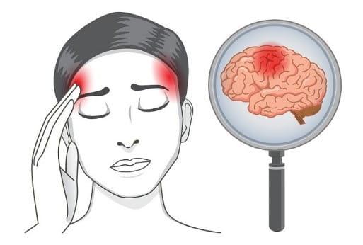 تاثیرات سکته بر نیمکره راست مغز