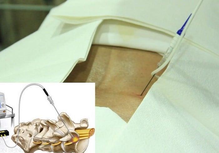 جراحان امیدوارند با این روش به چه نتیجهای برسند