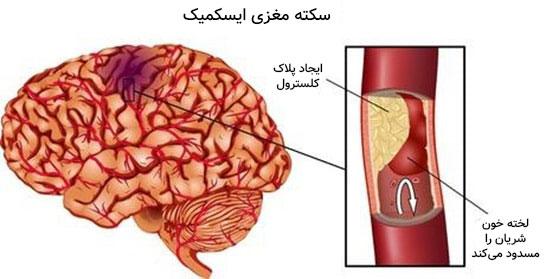 درمان سکته مغزی ایسکمیک