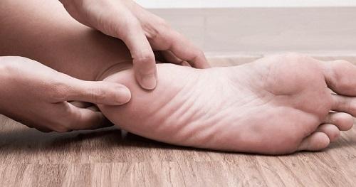علت به وجود آمدن خار پاشنه چاقی، صافی کف پا و کفش نامناسب