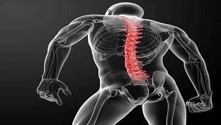 عوارض لوردوز گودی زیاد کمر و گردن چه عوارضی دارد؟