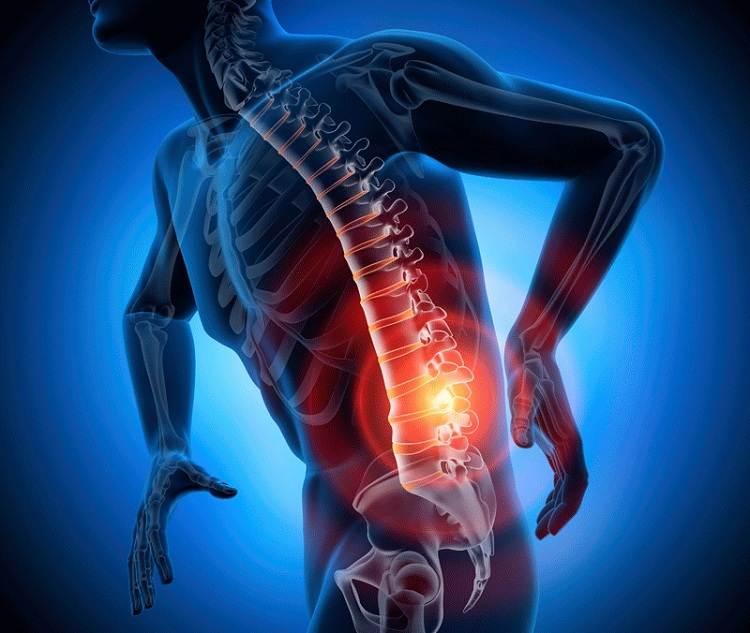 درمان آرتروز کمر و ستون فقرات