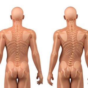 scoliosis-s1-facts